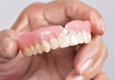 Dental implants in Zirakpur,