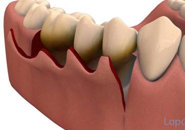 Dental clinic in Zirakpur,