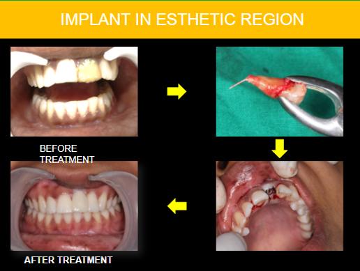 Best dentist in Zirakpur,