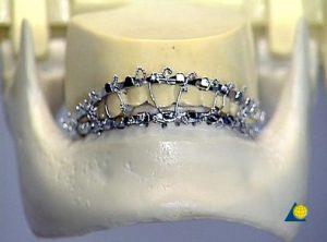 Best dentist dhakoli,