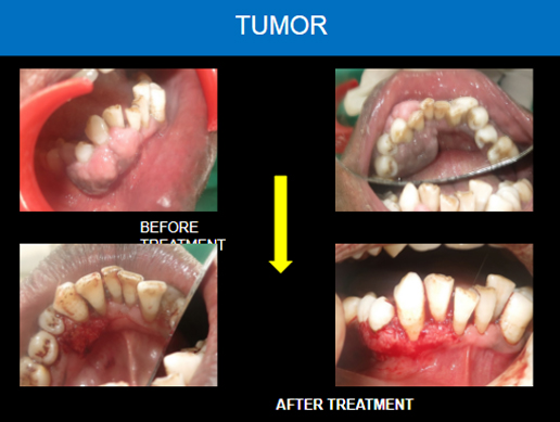 Dental clinic in sector 40 chandigarh,