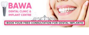 Dentist in Chandigarh,