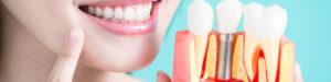 Best dentist in Chandigarh,